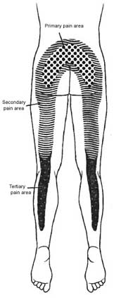 Lumbar Facet Syndrome Pain Referral Map