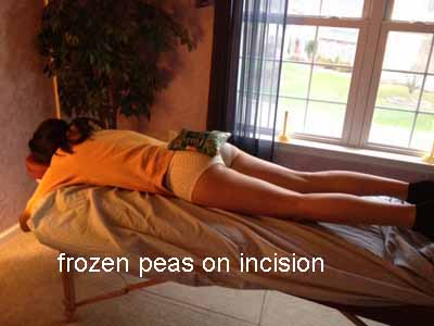 frozen peas on incision