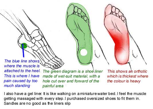 plantar fasciitis, and shoe liners to relieve it