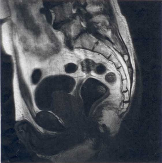 mri image including coccyx