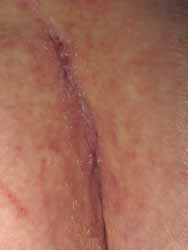 scar of glued skin